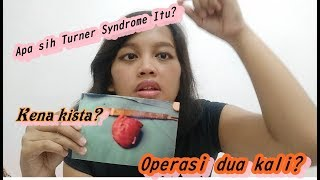 Turner Syndrome? 😱apa Itu? Ll Kena Kista Juga? 🤔
