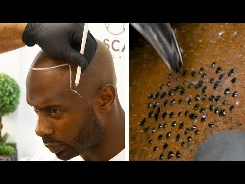 Bald Man Gets A Realistic Hair Tattoo