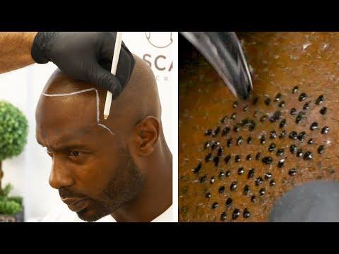 Bald Man Gets A Realistic Hair Tattoo