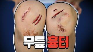 무릎 흉터 흔적도 없이 지우는 방법!