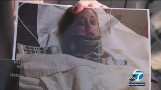 Convicted hit-run driver in Fullerton gets 2 years in prison   ABC7