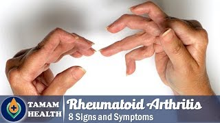 8 Symptoms of Rheumatoid Arthritis | Signs  of Rheumatoid Arthritis