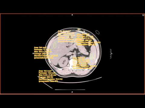A Practical Introduction to CT