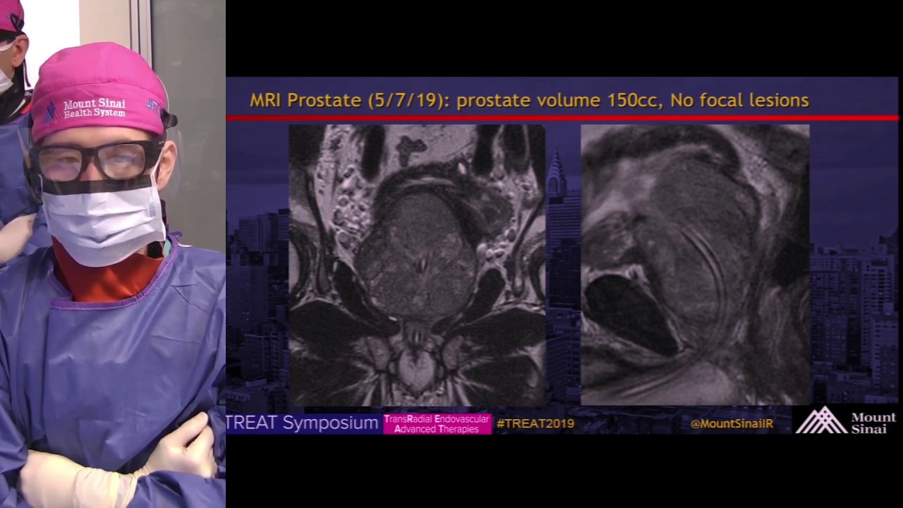 new york prostata mount sinai ct