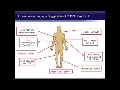 Pulmonary Arterial Hypertension Diagnosis, Classifications and Therapy