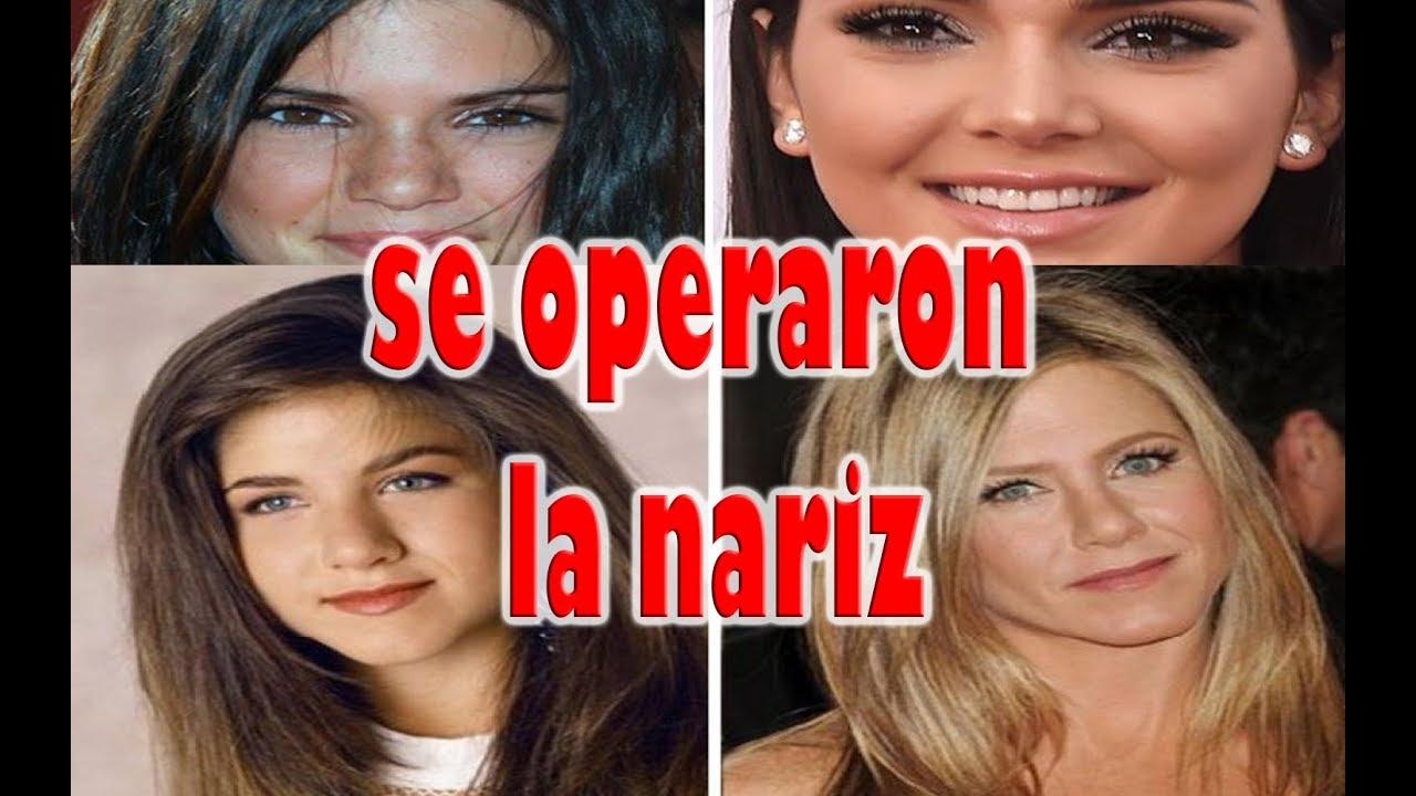 Famosas Narizonas Antes Y Después Mas De Tiatis Youtube