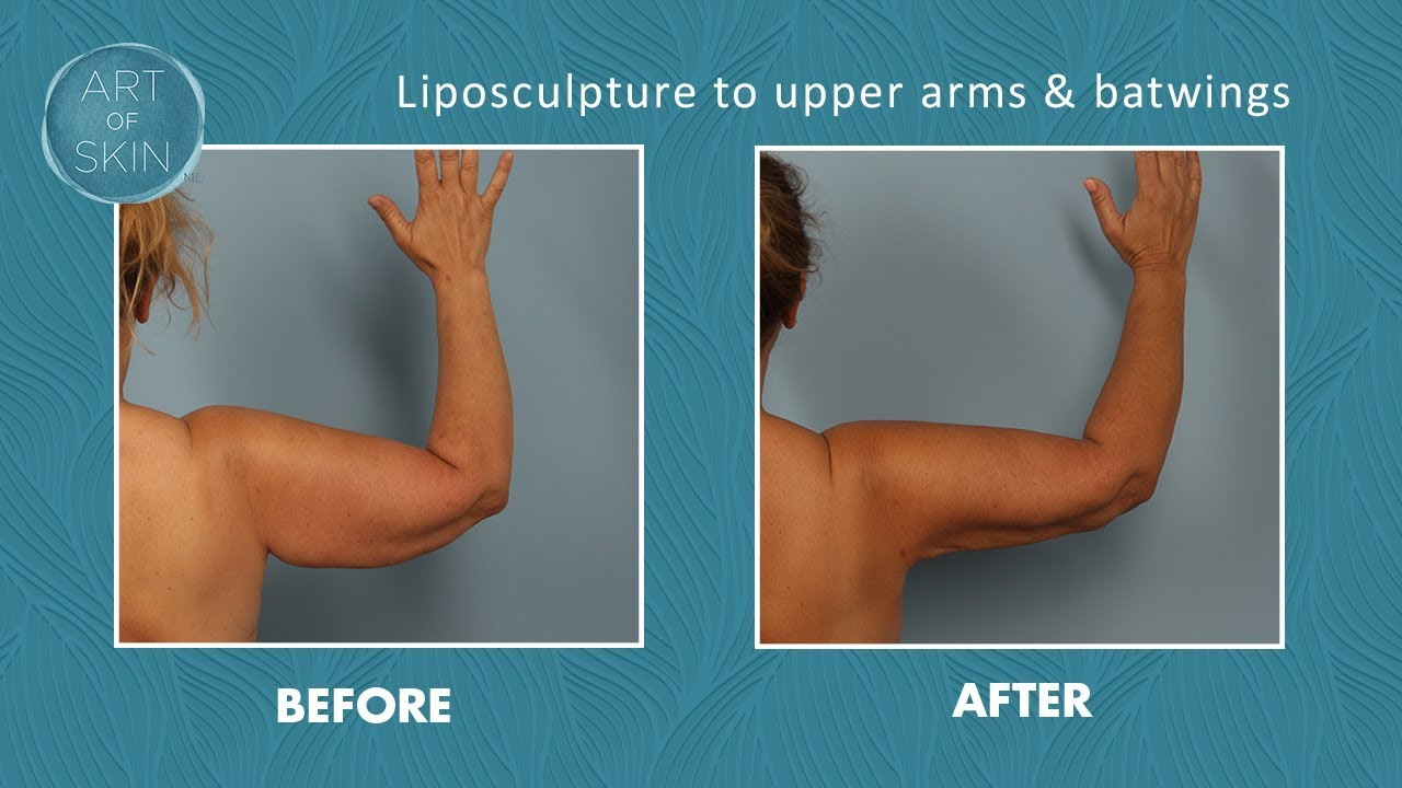 Liposuction Of Upper Arms With Tumescent Anesthesia Youtube