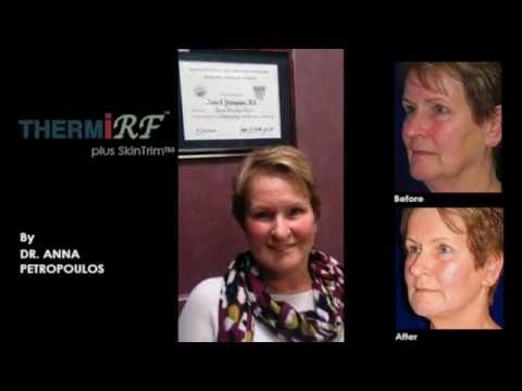 ThermiRF Patient Interview