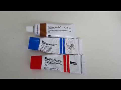Псориаз,лечение(ладонно подошвенный) видео 2