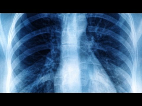 radiografie pulmonara plamani sanatosi