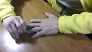 蜂針療法 リウマチ 指のこわばり施術方 東京 新宿