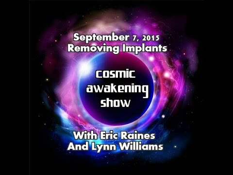 Cosmic Awakening Show- Removing Implants With Eric Raines and Lynn Williams