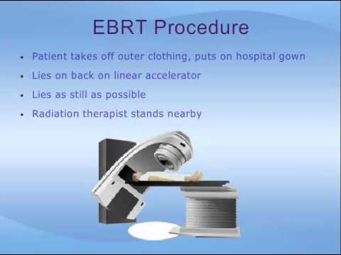 External Beam Radiation Therapy For Prostate Cancer Youtube