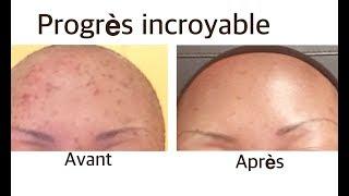 ... voici comment j'ai nettoyé l'acné sur mon visage + 5 cadeaux 🎁 ( Part 2 )