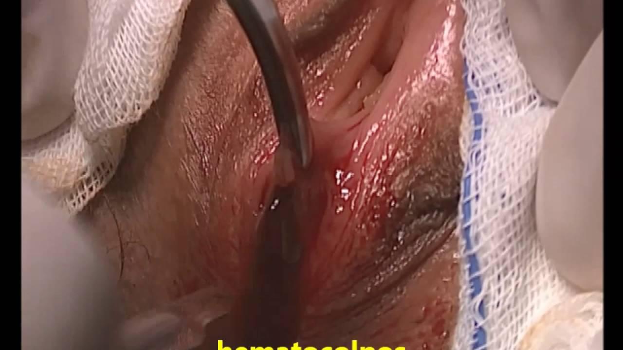imperforate hymen hematocolpos