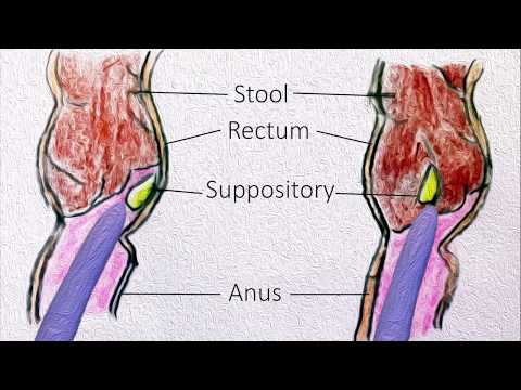 Rectal Suppositories - How To Use Them?