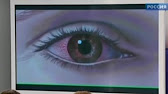 Флоксал (офлоксацин): антибактериальный, фторхинолон. Мазь. Сравнить цены / купить. Лекарственная форма: капли глазные; мазь глазная.