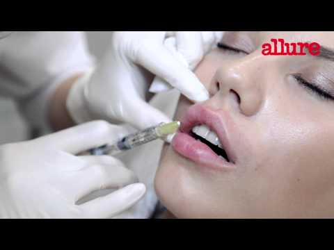 Техника увеличения губ филлерами: видео из операционной