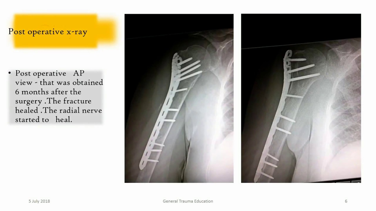 Humerus shaft fx with  associated radial nerve  palsy