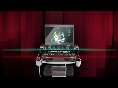 Mindray's New Point of Care Ultrasound System Redefines What's Possible