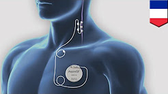 Vagus nerve stimulation: Man in 15-year vegetative state responds to nerve stimulation - TomoNews