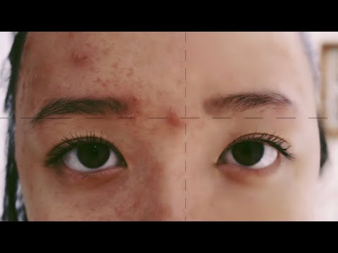Acne in 60 seconds