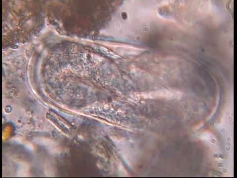 Root knot Nematode Egg parasitized by Trichoderma