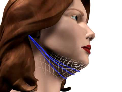 Безоперационная подтяжка шеи с помощью Aptos Needle