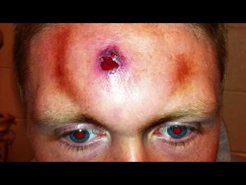 worst-infected-pimple---what-happened?
