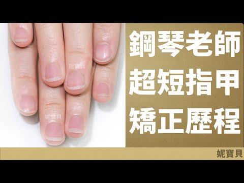 鋼琴老師的超短指甲 43週問題指甲處理歷程