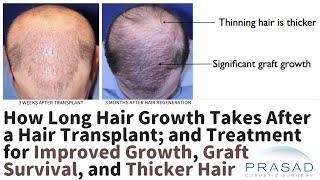 How Long Hair Regrowth Takes after a Hair Transplant, and Improving Growth Rate and Results