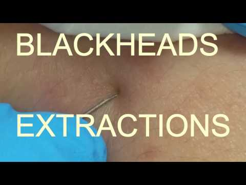 BLACKHEADS EXTRACTIONS