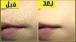 إزالة شعر الوجه والجسم كلة بالنشا والخل شعر فوق الشفايف تقليل نموالشعروتفتييح البشرة من اول استخدام
