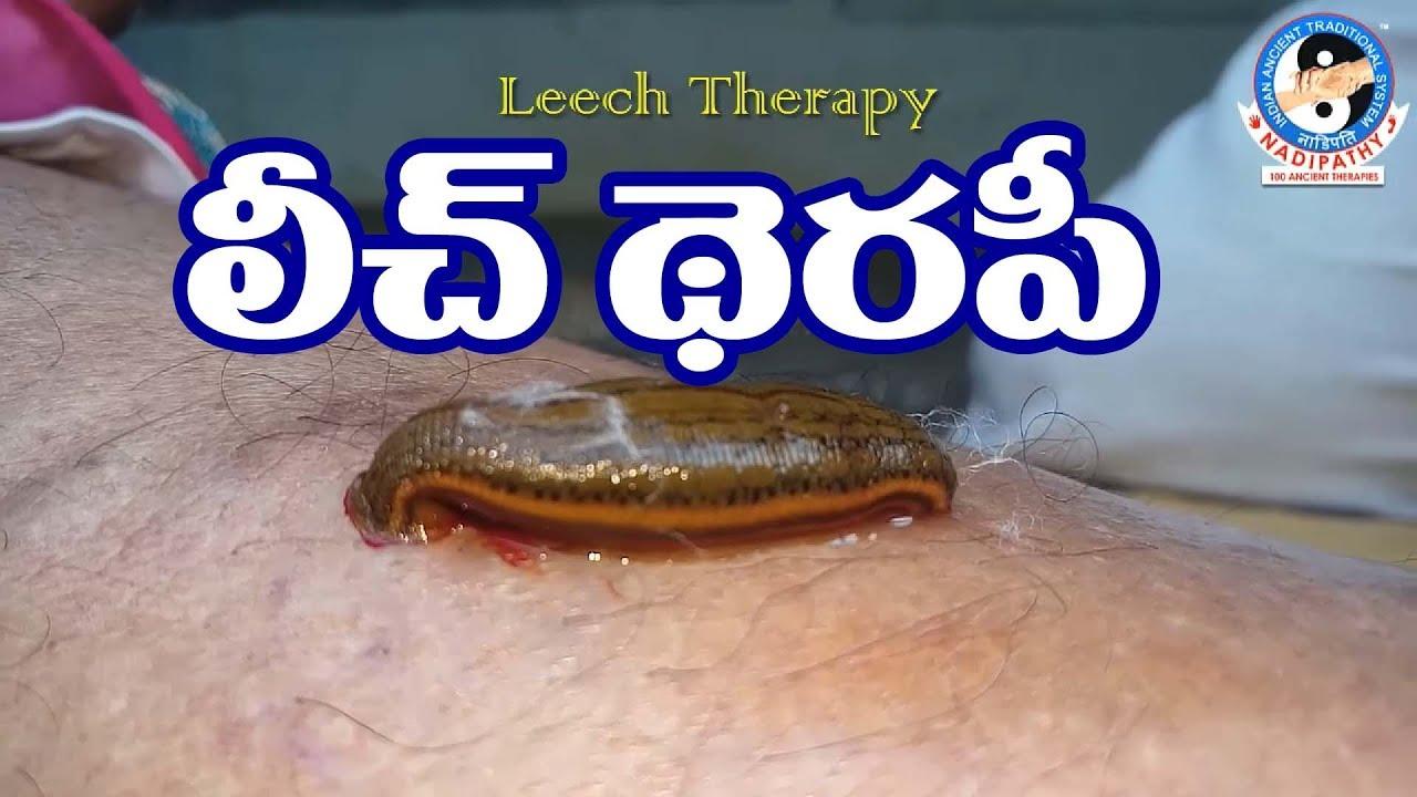 purificarea navelor în varicoză prima etapă a piciorului varicos pe picioare