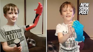 Boy with robotic arm can now play catch | New York Post