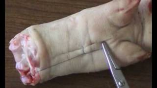 A simple interrupted suture for skin closure filmed from a close distance.mkv
