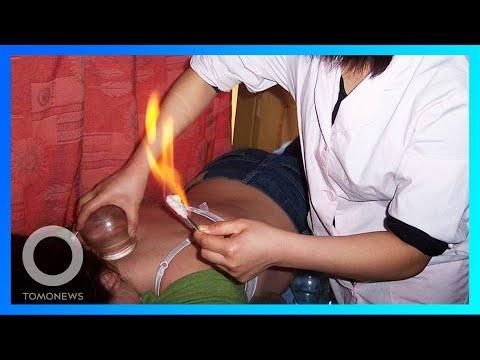 Wanita alami luka bakar setelah bekam; Lansia di Jepang pakai exosuit untuk bekerja - TomoNews