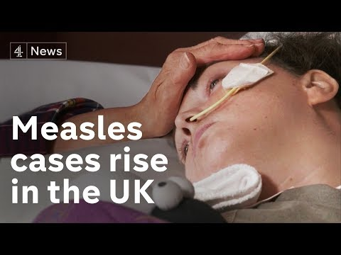 As measles cases quadruple in UK, what's the role of anti-Vax fake news?