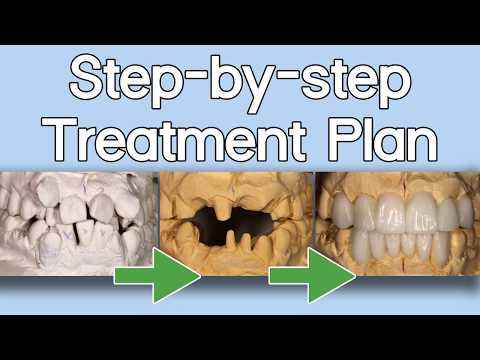 Step-by-step Treatment Plan - Minimum Prep Guide | Dental Lab Learning