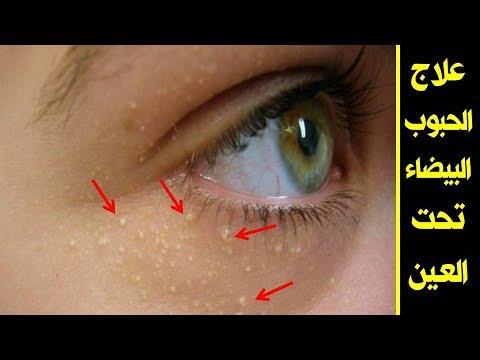 الحبوب البيضاء تحت العين العلاج والاسباب علاج الحبوب البيضاء تحت العين مع دكتور صبرين ابراهيم Youtube