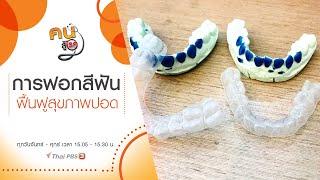 การฟอกสีฟัน, ฟื้นฟูสุขภาพปอด : คนสู้โรค (8 ก.ค. 63)