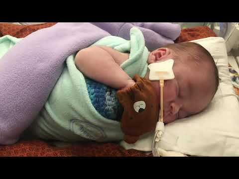 Cincinnati Children's Uses New Device to Help Critically Ill Infants with Kidney Failure