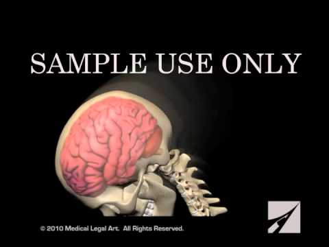 Traumatic Brain Injury -TBI / Causes - Disorders | Braininjury