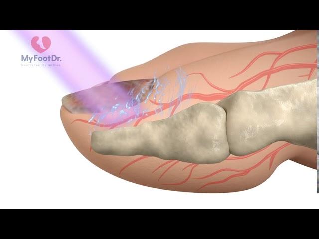 Lunula Laser Treatment For Fungal Toenails
