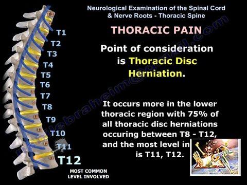 Breast Pain, Intercostal Nerve injury.