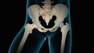Minimally Invasive Total Hip Replacement | THR | Nucleus Health