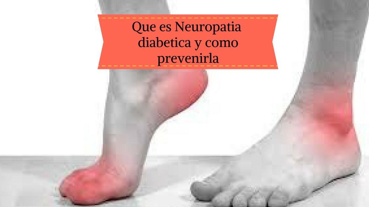 Código icd 10 para diabetes con neuropatía