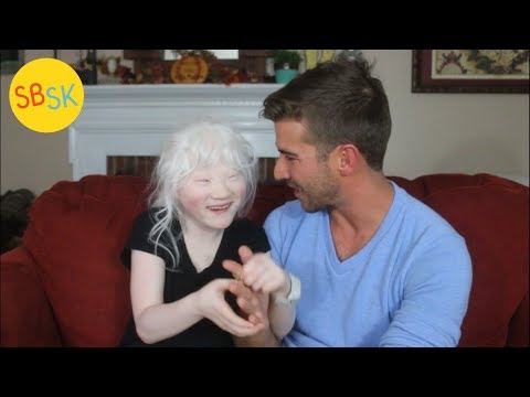 Life As A Blind Albino With A Rare Disorder (Adopted From An Institution)