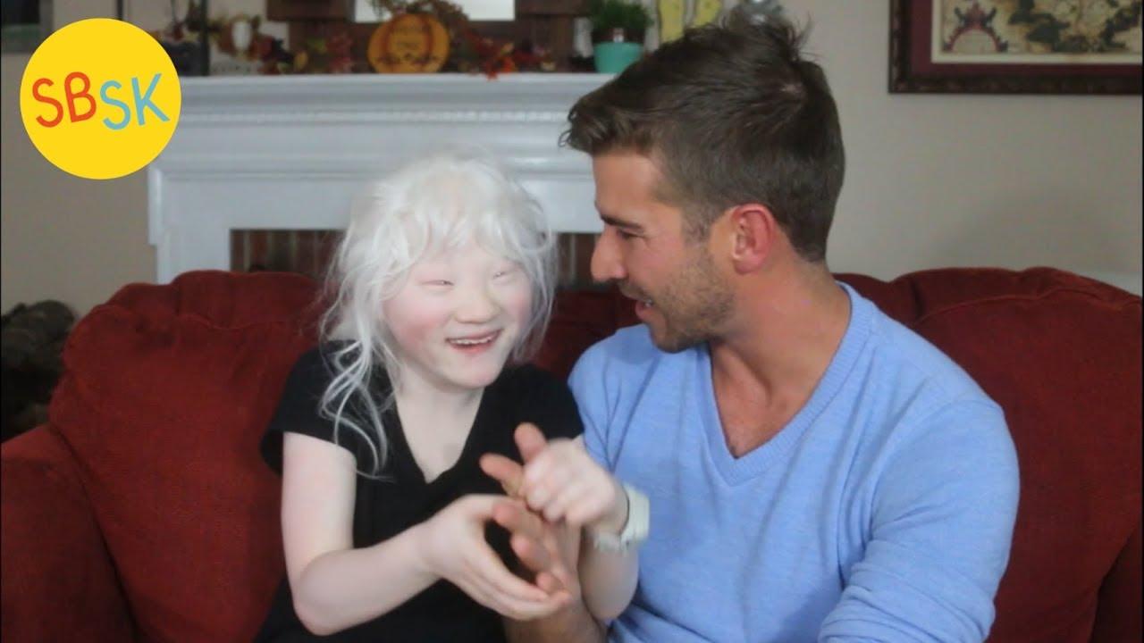 Dating Woman Albinos.