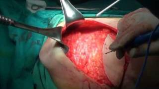 Repeat youtube video การผ่าเต้านม LD Flap